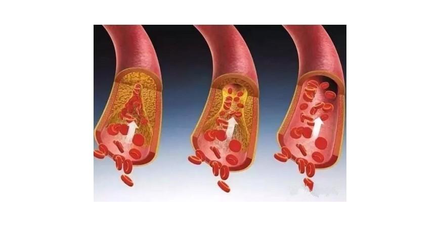 혈관 건강에 도움을 주는 영양제로 건강하게 오래살기
