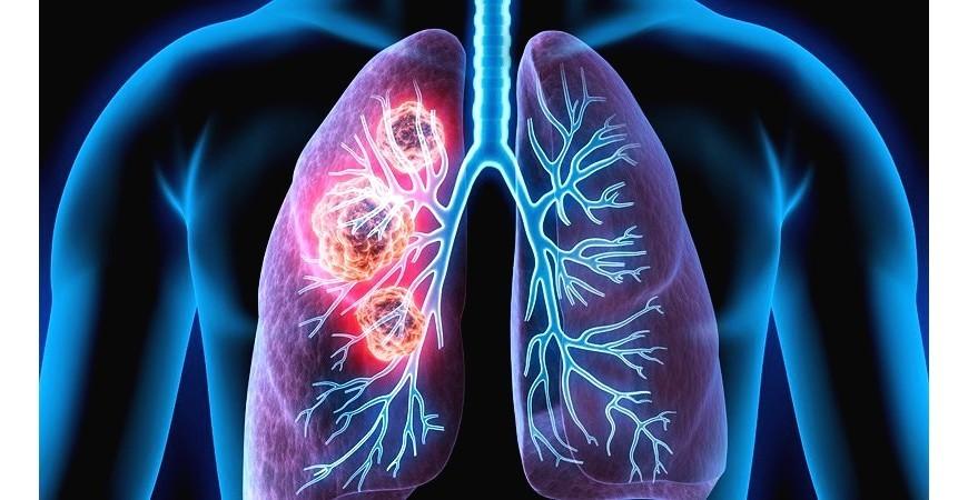 호흡기 폐 건강지키는 생활습관과 영양성분